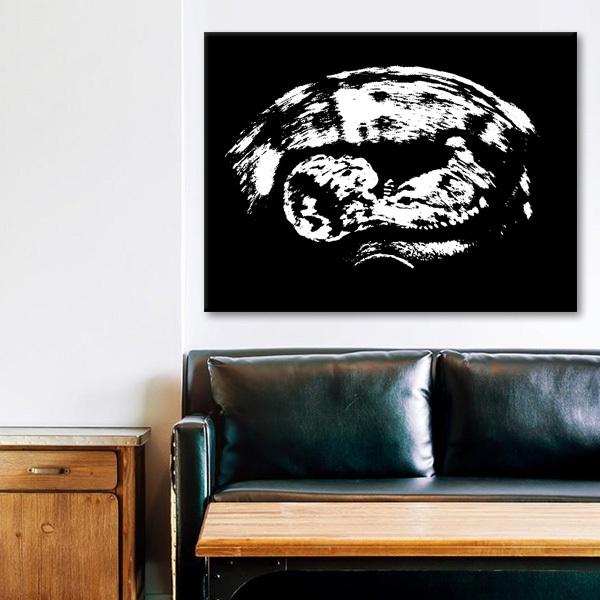 home ultraschallbild auf leinwand. Black Bedroom Furniture Sets. Home Design Ideas